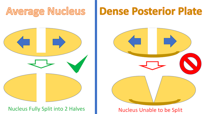 dense posterior plate.png