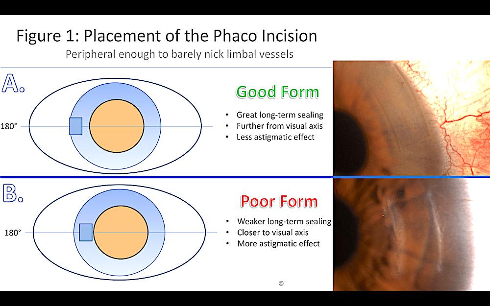 femto incision form