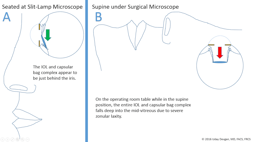 IOL falls into mid vitreous