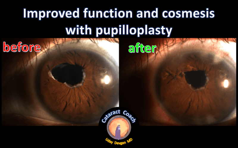 pupilloplasty before and after pic