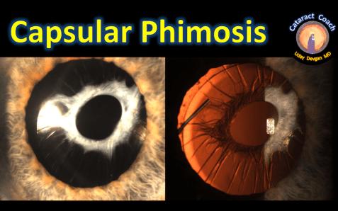 Capsular Phimosis