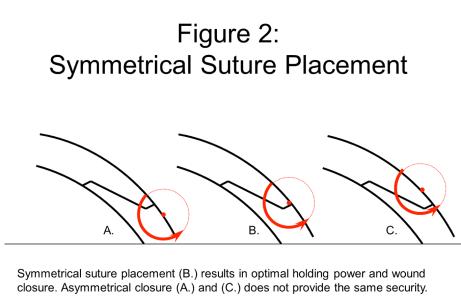 suture 2