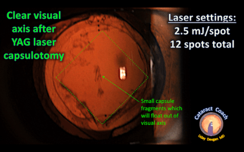 YAG capsulotomy after