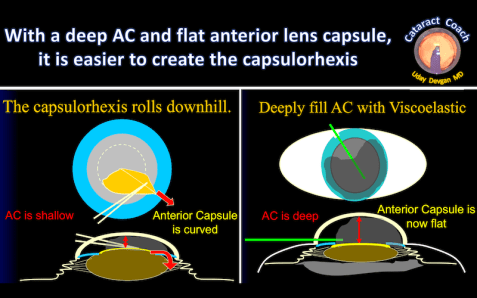flatten ant lens capsule daigram