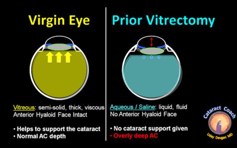 prior PPV diagram