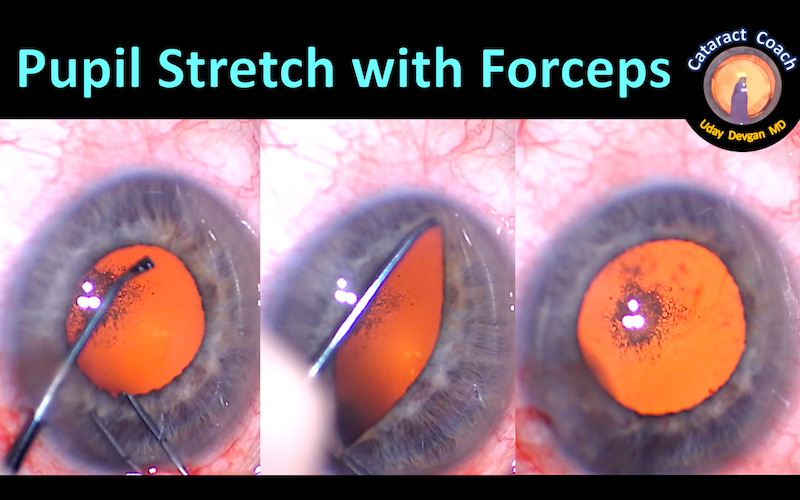 pupil stretch with forceps title 132
