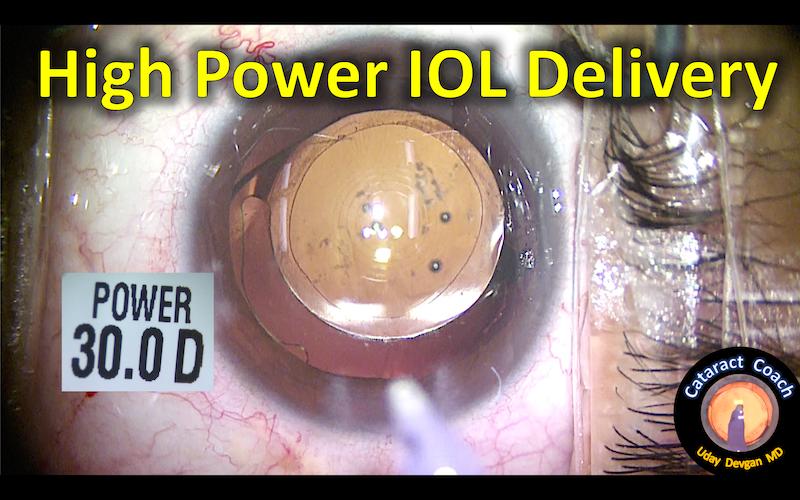 high power IOL 158 title