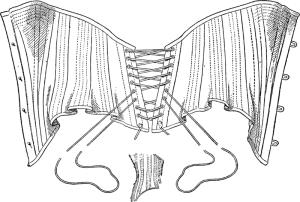 Le modèle de corset ne correspond pas à la période, mais c'est bien ce type de laçage