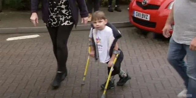 5-year-old walks 10 km with prostheses and raises $1 million