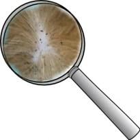 Flea dirt on an animal under magnifying glass
