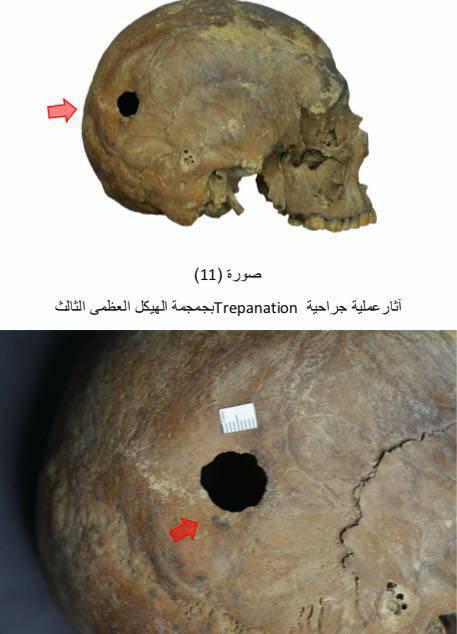 sarcofago-ale-trepanacion