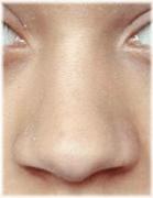 noseBlunt