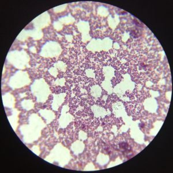 prokaryotes gram staining gram-positive gram-negative oil immersion micorscopy