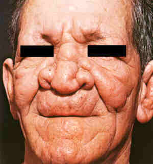 so called pretty leprosy