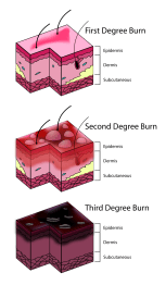 first-to-third-degree-burns