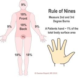 rule-of-nines