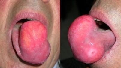 Intramuscular Lipoma