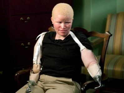 tanzanian-albino