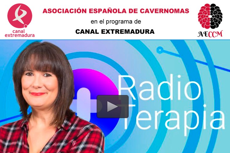 cavernomas-radioterapia-canal-extremadura
