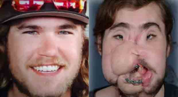 Man receives new face after botched suicide attempt