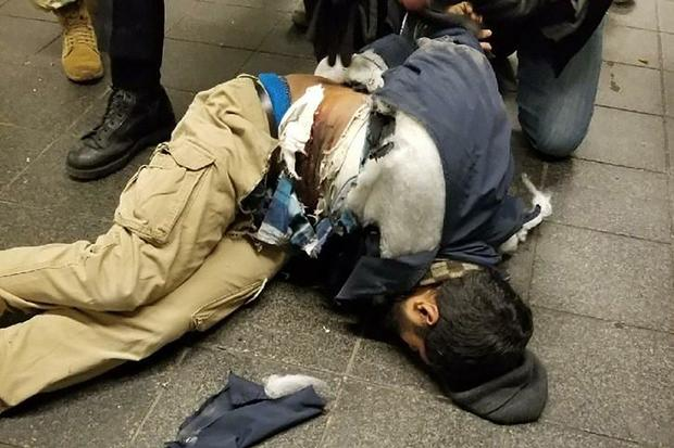 This photo confirmed by CBS News shows a suspect after his explosive device detonated in an underground passageway near the Port Authority Bus Terminal in New York City Dec. 11, 2017.