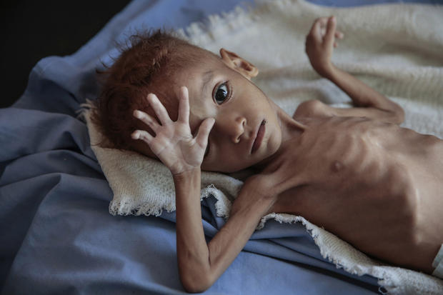 APTOPIX Yemen Displaced into Hunger Photo Essay