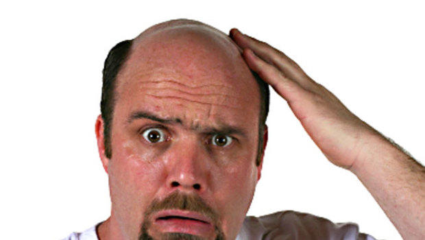 Is Male Pattern Baldness An Early Warning Sign Of Prostate