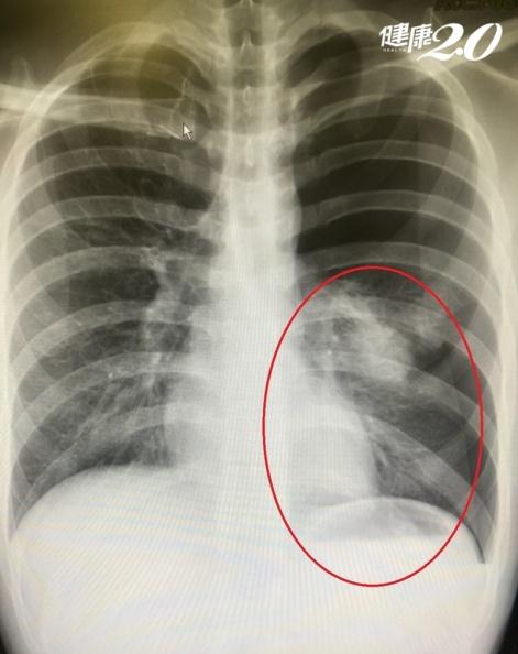 胸口突然刺痛怎麼回事?不一定是心臟問題 「身材瘦高」要注意!|健康2.0