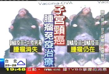 牛痘病毒剋子宮頸癌 臺研究冠全球│TVBS新聞網