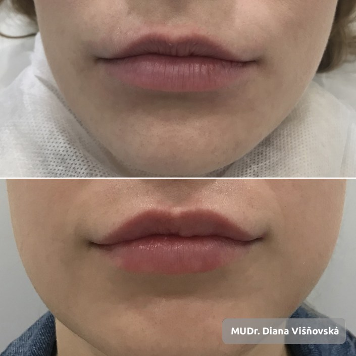 Lip Correction MUDr. Diana Visnovska Concept Clinic