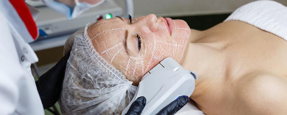 ultherapy-ultrazvukovy-lifting-omladzovacie-vysetrenie