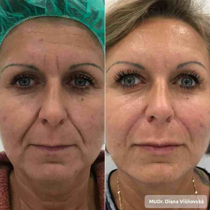facecontouring, Concept Clinic, omladenie