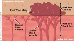 Clean Canvas Tattoo Removal Birth Mark  Port Wine » Clean