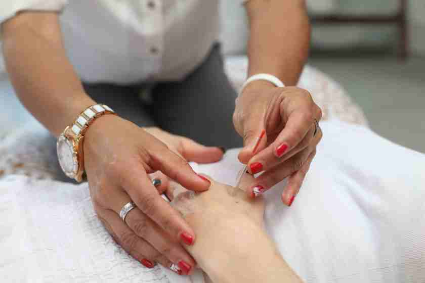 acupuncture - Capital Complementary Therapy Centre