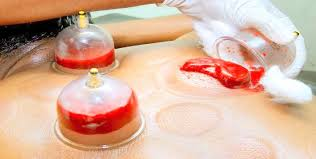 Hijama Cupping - Capital Complementary Therapy Centre