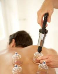 Vacuum Cupping- Capital Complementary Therapy Centre