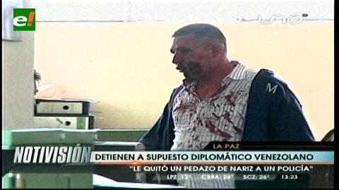 La Paz: Diplomático venezolano agrede a un policía y le arranca una parte de la nariz