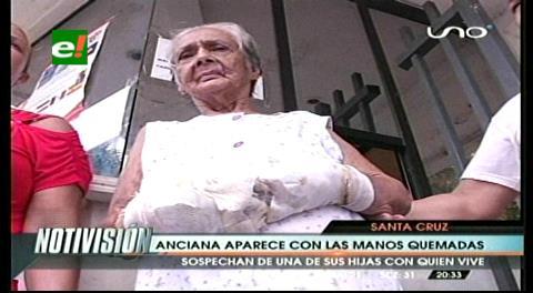 Denuncia: Mujer quemó las manos de su madre con ácido nítrico