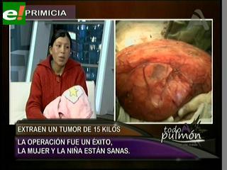 Extraen tumor gigante de mujer embarazada
