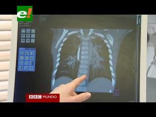 Realizan el trasplante de pulmón más pequeño en el Reino Unido