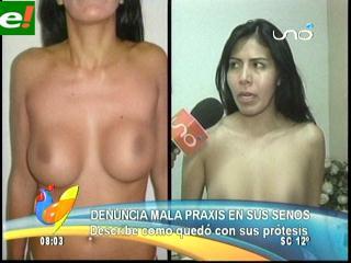 Modelo denuncia mala praxis en sus senos
