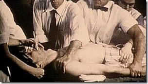 La electricidad para tratar enfermedades mentales comenzó como un experimento en la década del 30