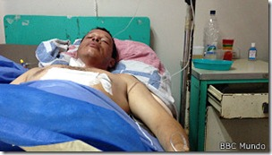 Leonardo Blanco recibió una bala en el abdomen
