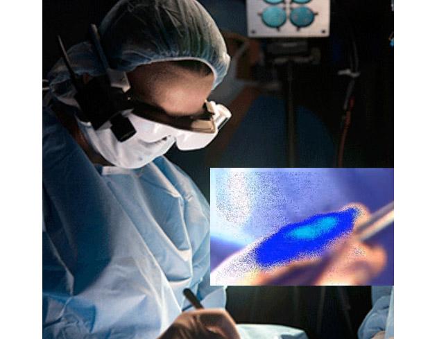 Desarrollan unas gafas inteligentes que permiten a los cirujanos detectar células cancerígenas