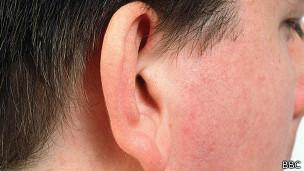 La idea es que la oreja creada en laboratorio crezca con el paciente.