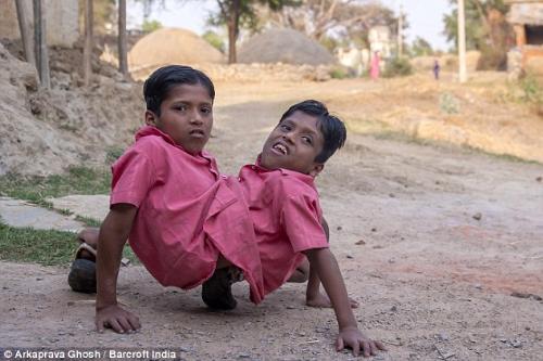 Conjoined-twins-Shivanath-Shivram-Sahu-20140411231322