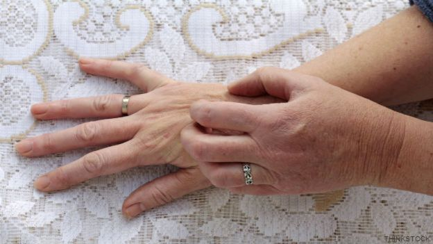 Señora rascándose la mano
