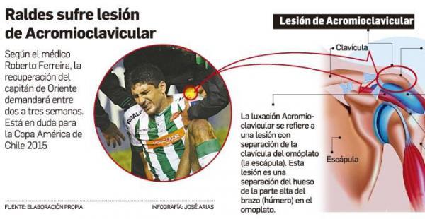 Así es como terminó el hombro del capitán de la selección nacional y de Oriente Petrolero. Su participación en la Copa América pone en vilo a los bolivianos