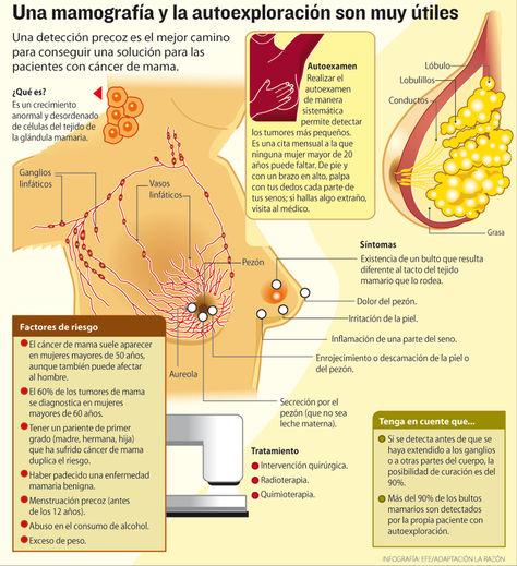 Infografía: Mamografía y autoexploración son muy útiles. Fuente: EFE