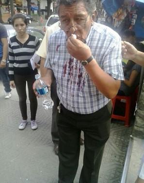 El decano de la Facultad de Medicina, Carlos Espinoza, tras recibir una golpiza.   FUL -  .   Agencia